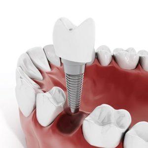 Chirurgia orale e implantologia dentale Cenisia San Paolo Torino